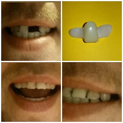 DIY*Temporary Replacement Front Tooth Central Incisor*Instant Tooth