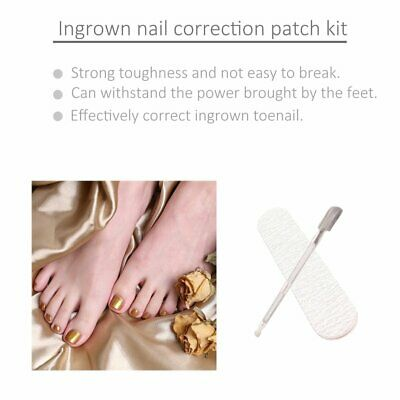 Ingrown Toenail Straightening Clip Curved BS Brace Patch Correction Tool Kit ND