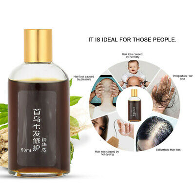 Fleece-flower Root Fast Hair Growth Tonic Stop Hair Loss Promote Regrowth Serum