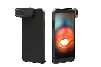 D-EYE Smartphone Ophthalmoscope for iPhone RETINAL CAMERA IMAGING SYSTEM