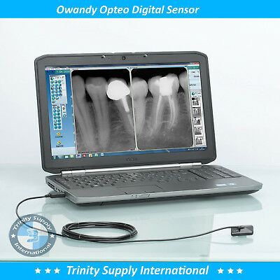 Digital X-Ray Sensor Size # 2 Owandy Opteo High Definition Images Made in France
