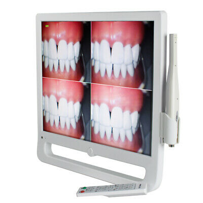 Dental Intra Oral Camera 1208×1024 High Resolution 17 In LCD Monitor LED w/ WIFI