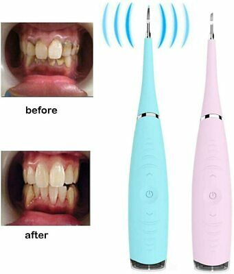 Ultrasonic Scaler Electric Tooth Cleaner Dental Calculus Stain Remover 100 Swabs