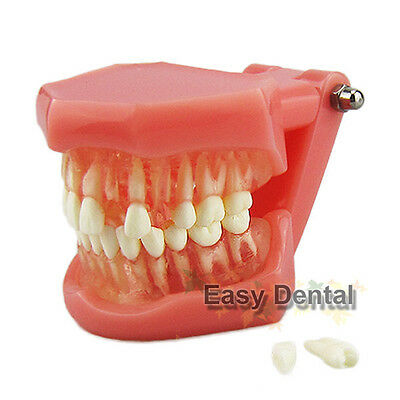 NEW - Dental Standard Teeth Tooth Model with Removable Teeth & Transparent Gum