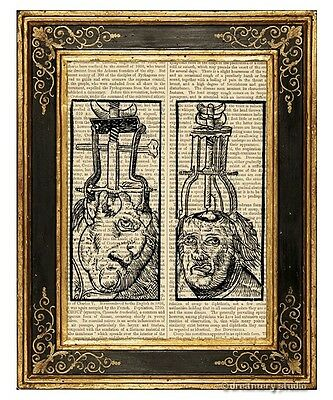 Medieval Brain Surgery Art Print on Antique Book Page Medical Anatomy