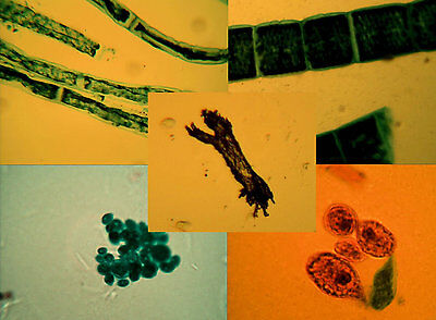 Microscopy Prepared Slides: Freshwater Algae - Set of 6