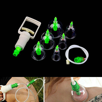 Medical Vacuum Stress Relief Chinese Body Cupping Massage Set Acupuncture GF