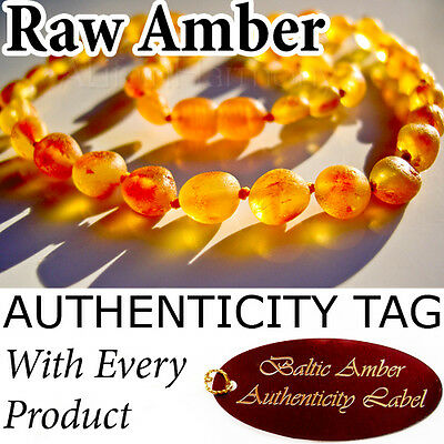 RAW Golden Honey BALTIC AMBER NECKLACE Child Teething AGbA® Certified