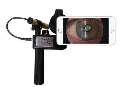 Portable Hand Held Slit Lamp for iPhone 6/6Plus or 7/7Plus by EyePhotoDoc
