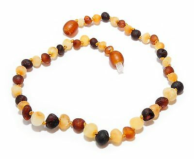 Genuine RAW Baltic Amber Adult Anklet 26 - 27 cm Mixed Beads