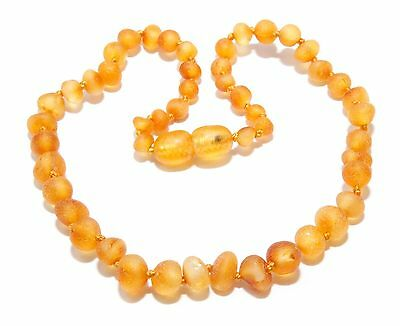 Genuine Raw Baltic Amber Beads Baby Necklace Honey 11 - 11.8 in