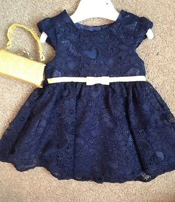 Navy And Gold Baby Girl Party Dress 0/3 Months Never Worn