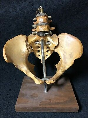 Antique Pelvis Anatomical Model Mounted on Stand