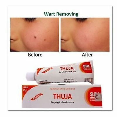 Thuja Homeopathic Herbal Cream wart remover mole skin tag removal Free Ship