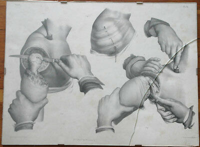 rare antique French medical surgical amputation engraving, one of several listed
