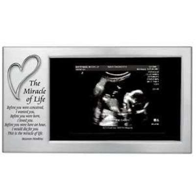 MIRACLE of LIFE - Babys First Photo Frame - SONOGRAM/Ultrasound Picture/SATIN 8""