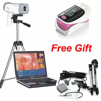 800,000 pixels Video Electronic Colposcope SONY Gynecology EndoVaginal +Tripod