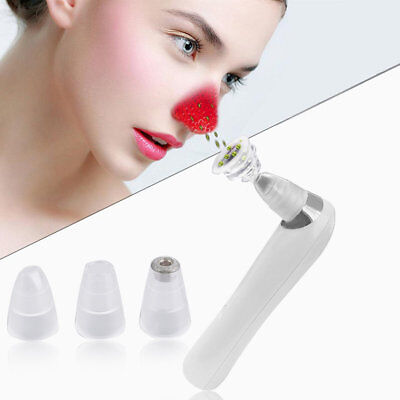 Professional Beauty Face Pore Cleaner Nose Blackhead Acne Remover Instrument DP