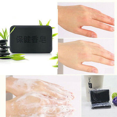 Soap control oil, julep, bamboo charcoal soap, whitening soap
