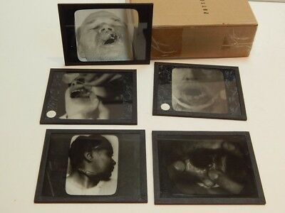 5 Antique Lantern Slides Medical Dentistry Oddities Abnormalities Patients