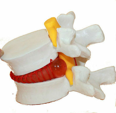 Chiropractor Subluxation Degeneration Pinched Nerve Model