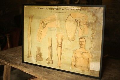 Edwardian Medical poster of fractures and dislocations, Chemist science
