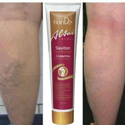 Varicose Veins Legs Cream Sore Restless Massage Gel Slaviton TianDe 125 ml