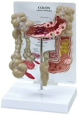 Colon Model G-334  Anatomical Models Brand New Never used in Original Box