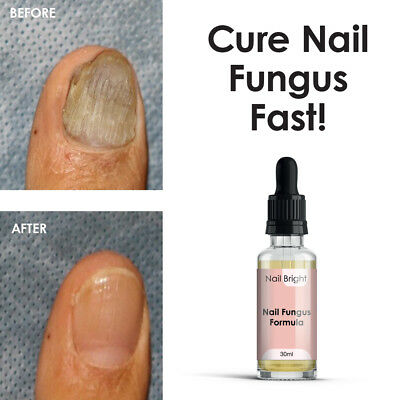 Nail Bright Serum – Antifungal Infection Stop Nail Fungus Stop Athletes Foot