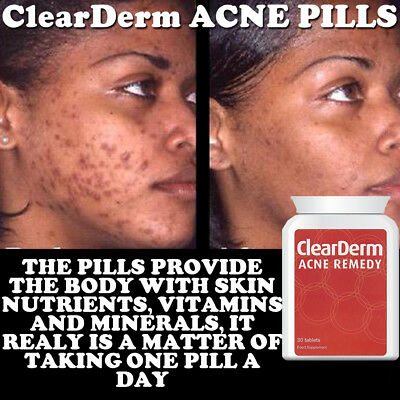 Clearderm Acne Pill Tablet Stop Pimples Spots Max Strength