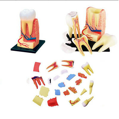 Body Model Human Anatomica Teeth Models Medical School Educational Toys 250g New