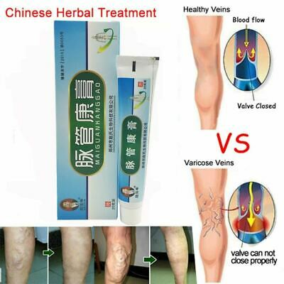 2Pcs Medical Varicose Cream Veins Treatment Leg Acid Bilges Itching Earthworm Lu