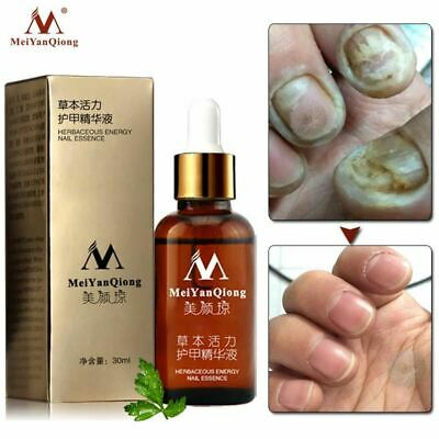 Fungal Nail Treatment Feet Care Essence Whitening Foot Toe Fungus Removal Gel Pa