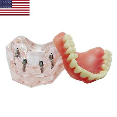 USA Dental Implant Restoration Model Over-denture Superior with 4 Implants 6001