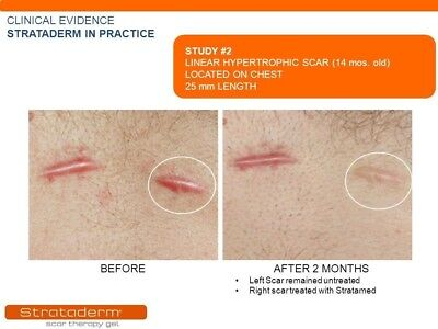 Strataderm Scar Therapy Gel 50g/1.75oz- old and new scars/ 1x/day/ waterproof