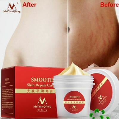 Smooth Skin Cream For Stretch Marks Scar Removal Maternity Skin Repair Body