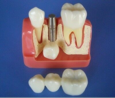 Implant Teeth Model 2.5x size for Dentist Patient Communication Education
