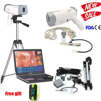 High resolution CCD Electronic Colposcope SONY 800,000 Pixels Camera Tripod Sale