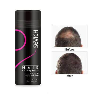 Sevich Hair Loss Thicker Powder Hair Building Fibers Thinning Concealer Solution