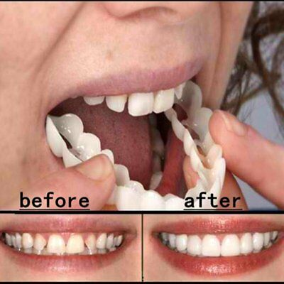 Cómodo Snap On Tooth Instant Perfect Smile Blanqueo Smile Dientes Cover Ñ