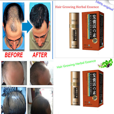 2 packs Natural Hair Loss Treatment For Men Fast Growth Regrowth essence