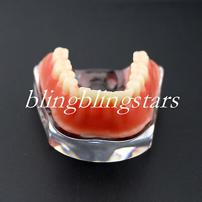 Dental Overdenture Restoration Typodont Implant Teeth Model With Silver Bar 6008