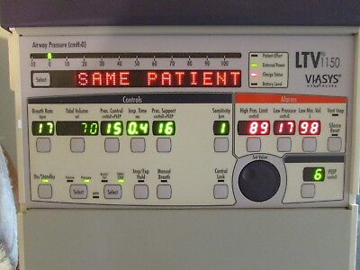 Viasys LTV 1150 Ventilator w/new battery and just inspected
