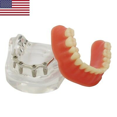 USA Dental Implant Model Overdenture Typodont Inferior Preccision Implant Silver