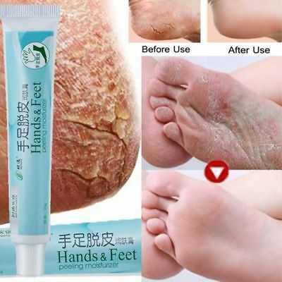 Powerful Hand Foot Crack Cream Heel Chapped Peeling Repair Anti Dry Skin Care