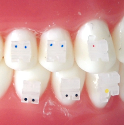 Orthodontic Clear Brackets MBT .022 Slot With Hooks on 3's Ceramic 10 Sets