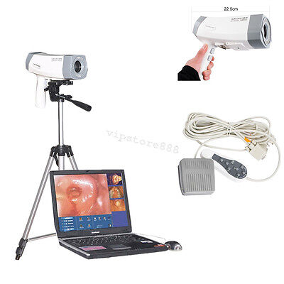Digital Video Electronic Colposcope +Soft​ware SONY Camera 800,000 pixels UPS CE