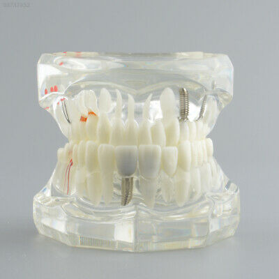 B7F2 Dental Implant Disease Teeth Model Tooth Study Pathological Extrusion