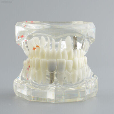 A511 Dental Implant Disease Teeth Model Study Analysis Pathological Extrusion