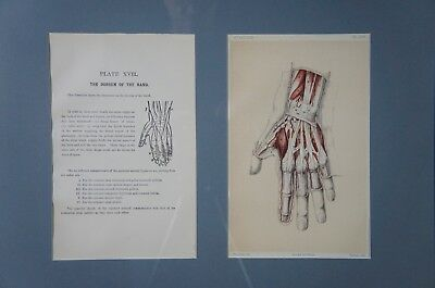 Framed Antique Anatomical Dissection Print ~ Dorsum of the Hand ~ 1896 Anatomy